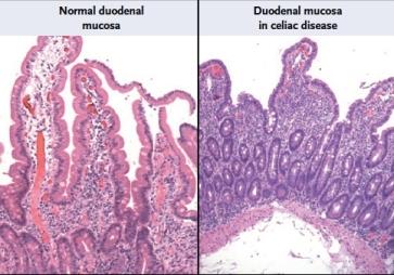 celiac-disease-img.jpg